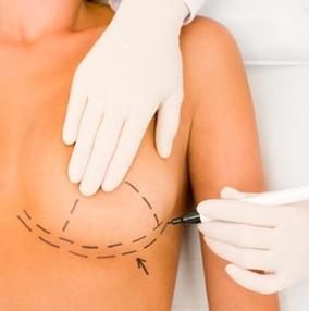 göğüs-küçültme-ameliyatı (2)